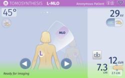 Bedienfreundliche Mammographie